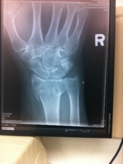 X-ray of my wrist: the bone on the far left of the image is chipped away.